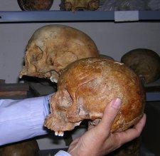 En primer plano un cráneo femenino, en segundo plano uno masculino