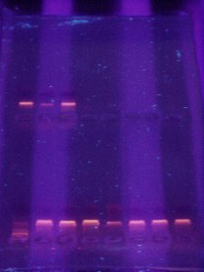 Electroforesis en gel de agarosa de moléculas de ADN